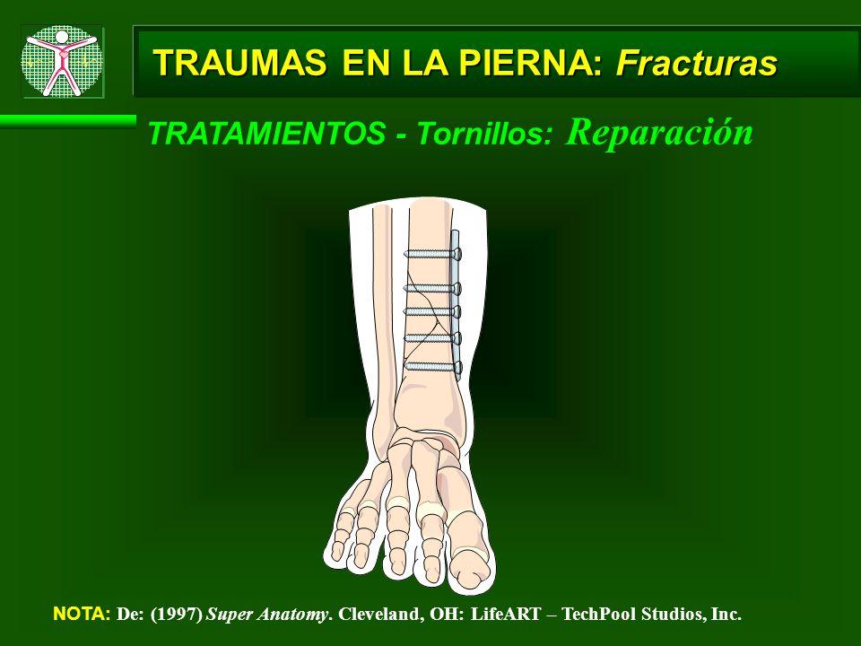 TRAUMAS EN LA PIERNA: Fracturas