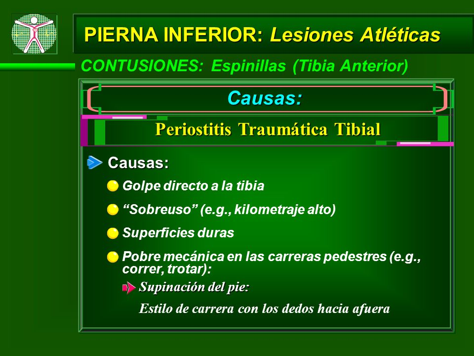 Periostitis Traumática Tibial