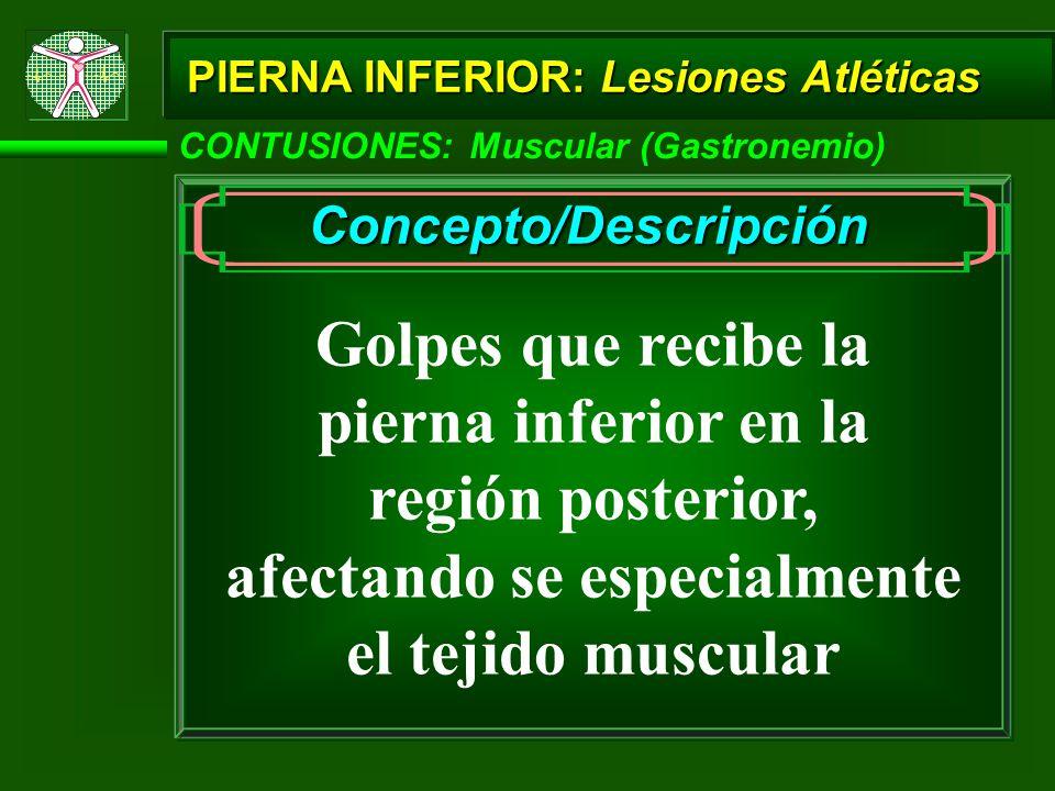 Concepto/Descripción afectando se especialmente el tejido muscular