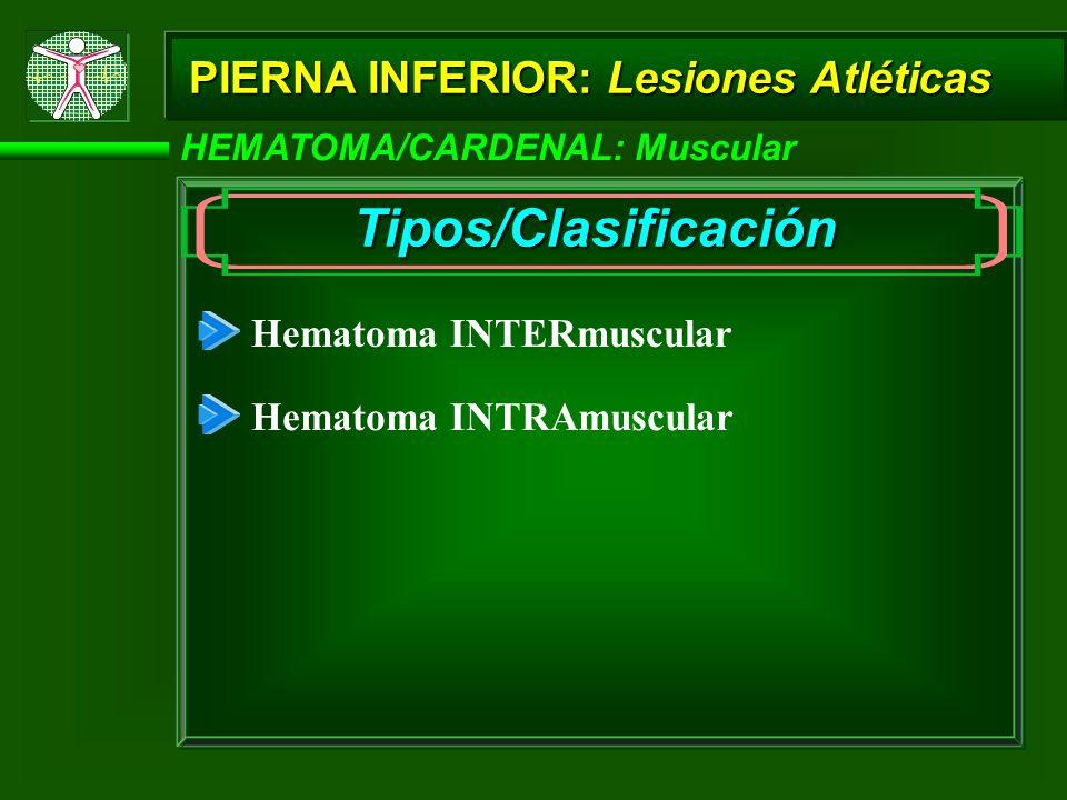 Tipos/Clasificación PIERNA INFERIOR: Lesiones Atléticas