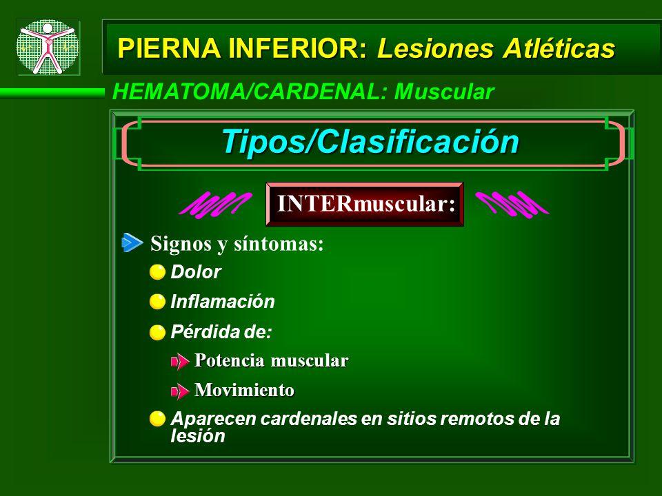 Tipos/Clasificación PIERNA INFERIOR: Lesiones Atléticas INTERmuscular: