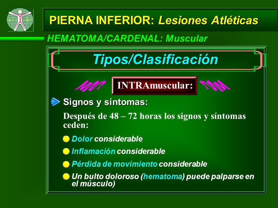 Tipos/Clasificación PIERNA INFERIOR: Lesiones Atléticas INTRAmuscular: