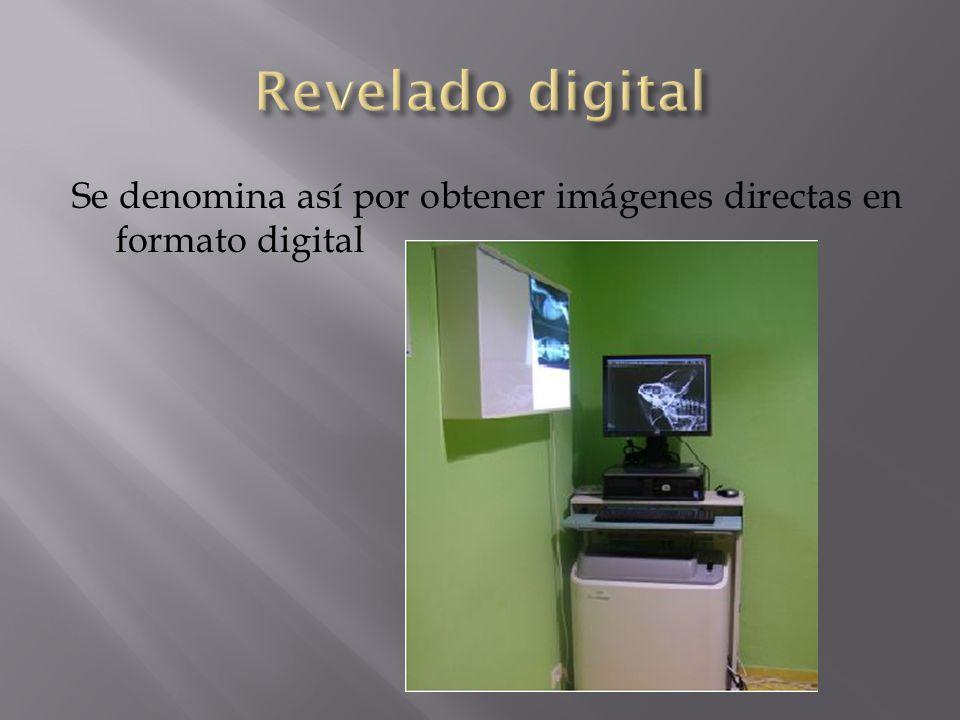 Revelado digital Se denomina así por obtener imágenes directas en formato digital