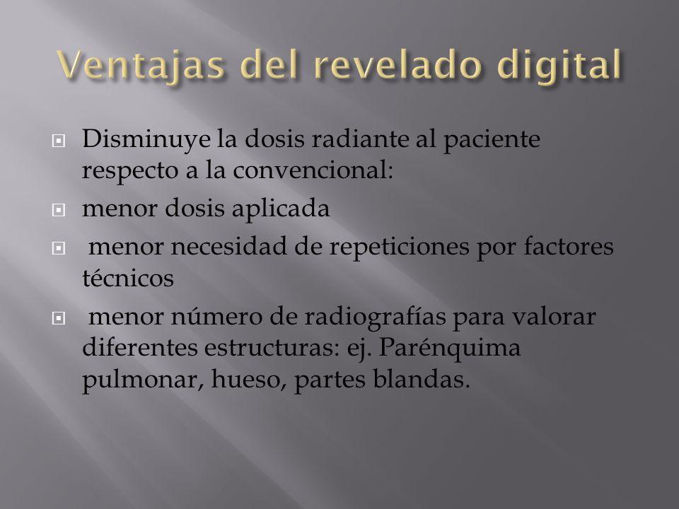 Ventajas del revelado digital