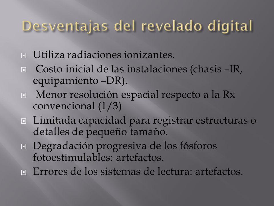 Desventajas del revelado digital