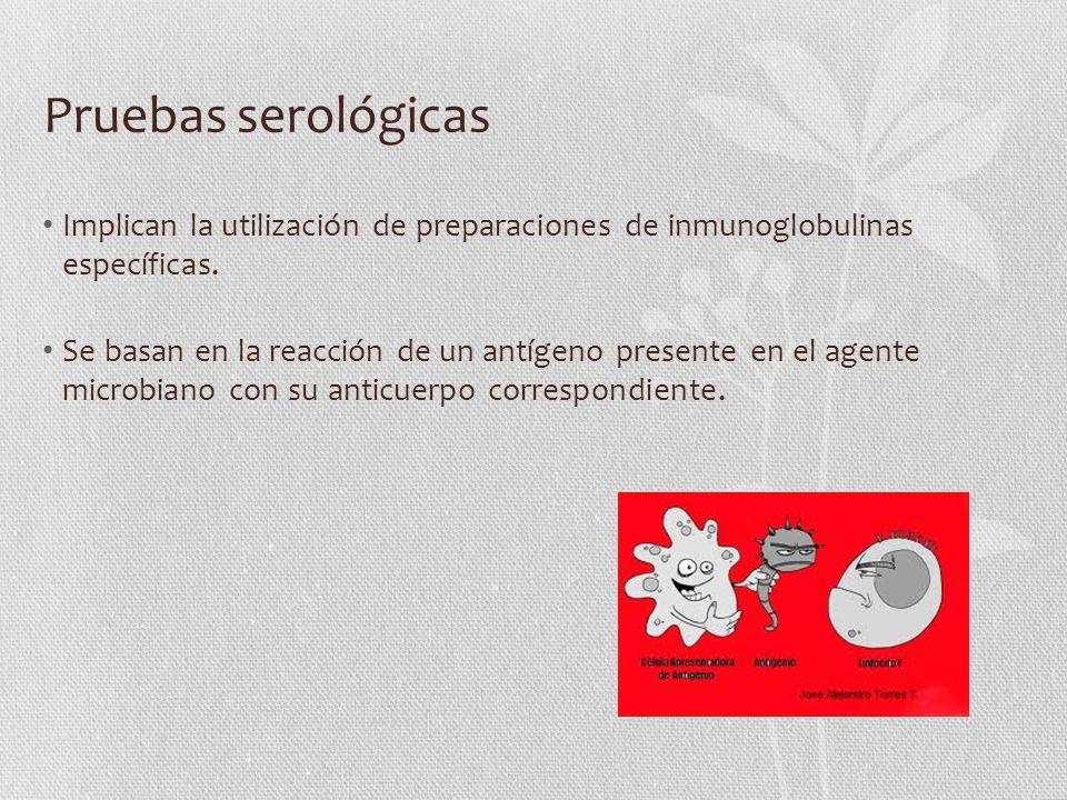Pruebas serológicas Implican la utilización de preparaciones de inmunoglobulinas específicas.