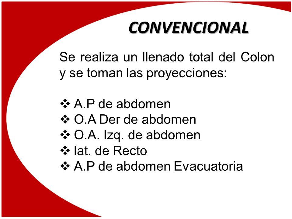 CONVENCIONAL Se realiza un llenado total del Colon y se toman las proyecciones: A.P de abdomen. O.A Der de abdomen.