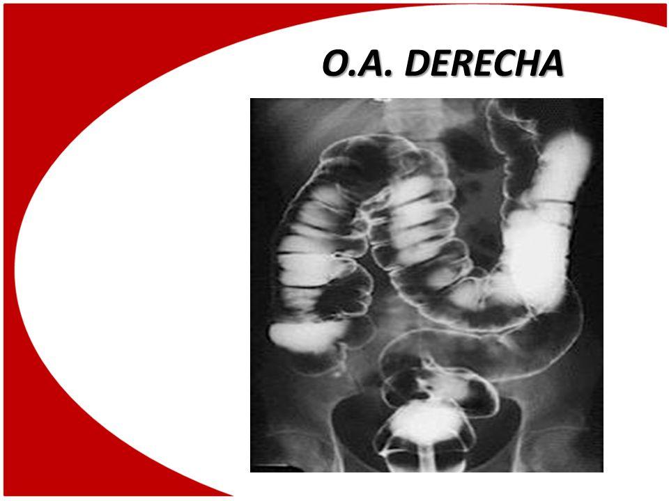 O.A. DERECHA