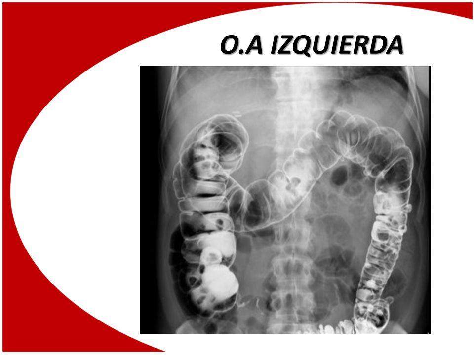 O.A IZQUIERDA