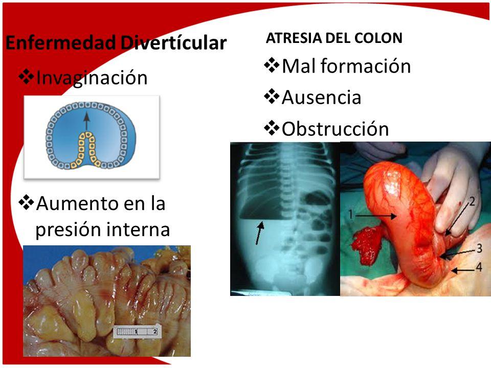 Enfermedad Divertícular Mal formación Ausencia Obstrucción