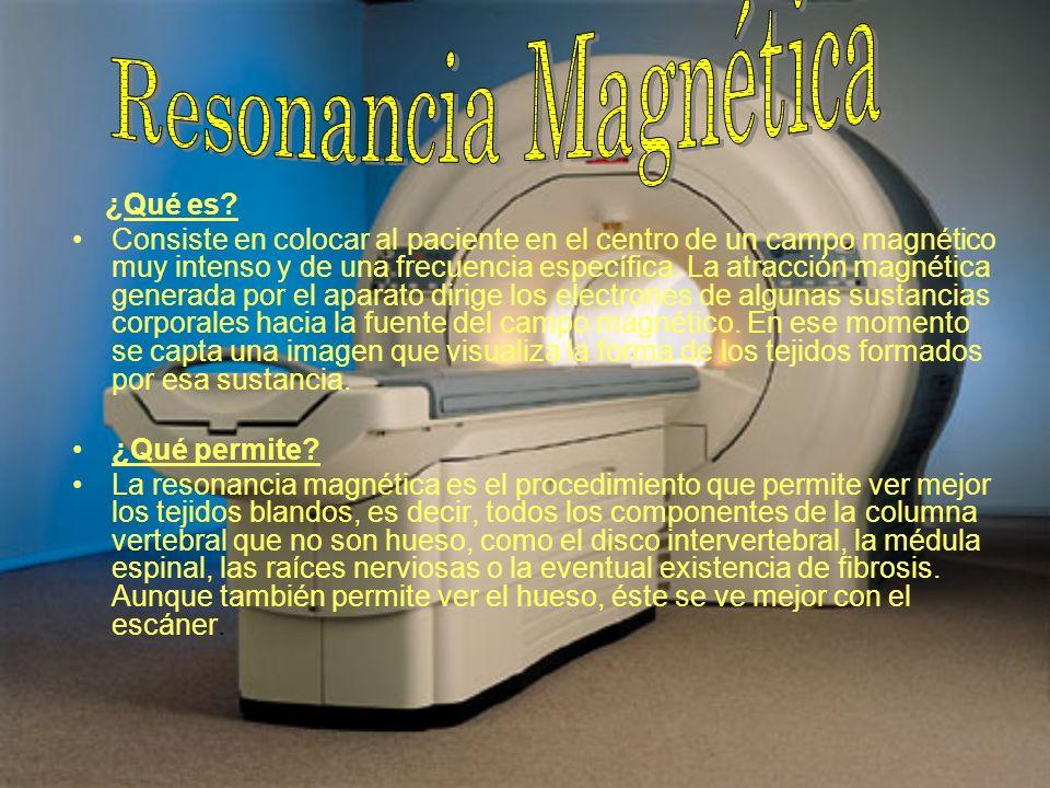 Resonancia Magnética ¿Qué es