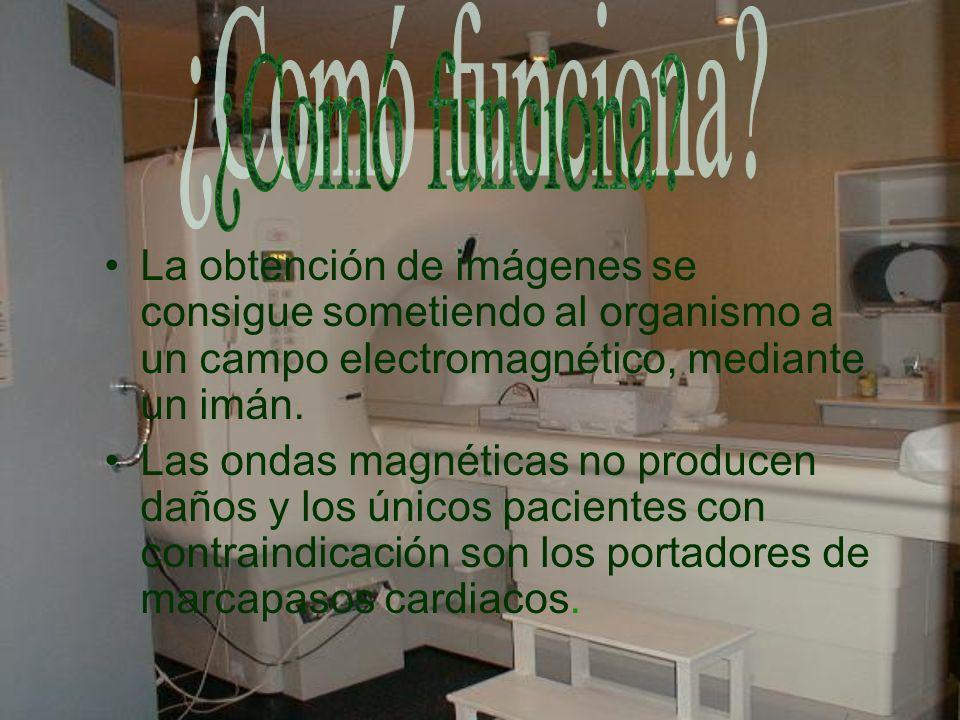 ¿Comó funciona La obtención de imágenes se consigue sometiendo al organismo a un campo electromagnético, mediante un imán.