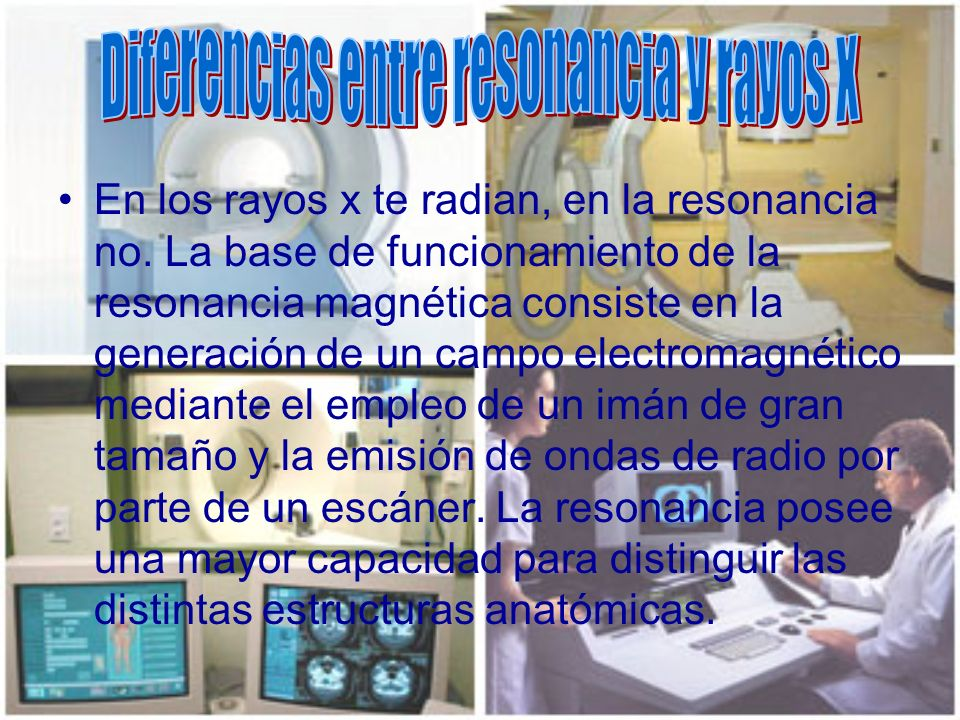 Diferencias entre resonancia y rayos X