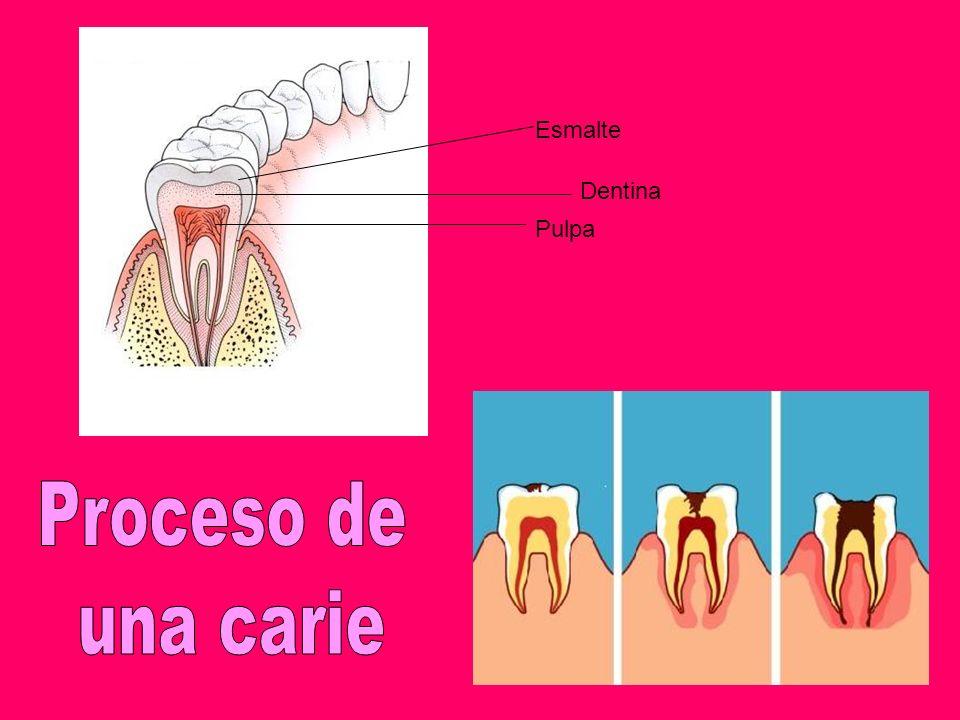 Esmalte Dentina Pulpa Proceso de una carie