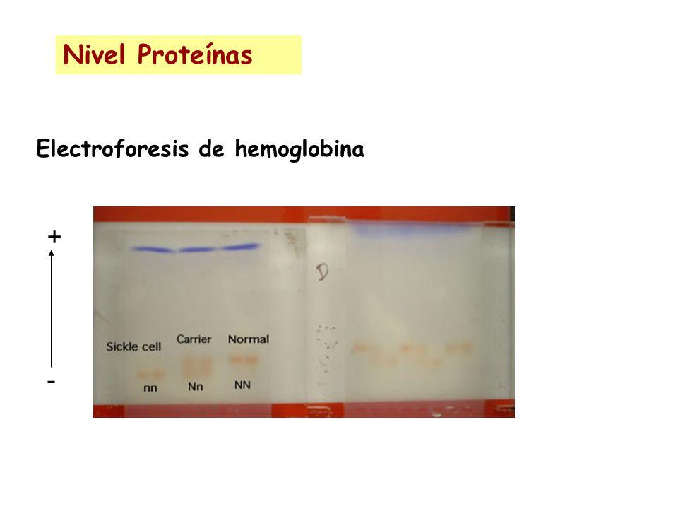 Nivel Proteínas Electroforesis de hemoglobina + -