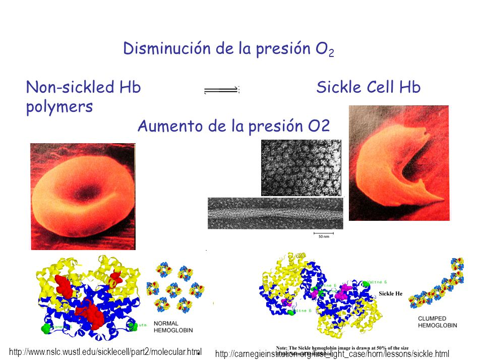 Non-sickled Hb Sickle Cell Hb polymers Aumento de la presión O2