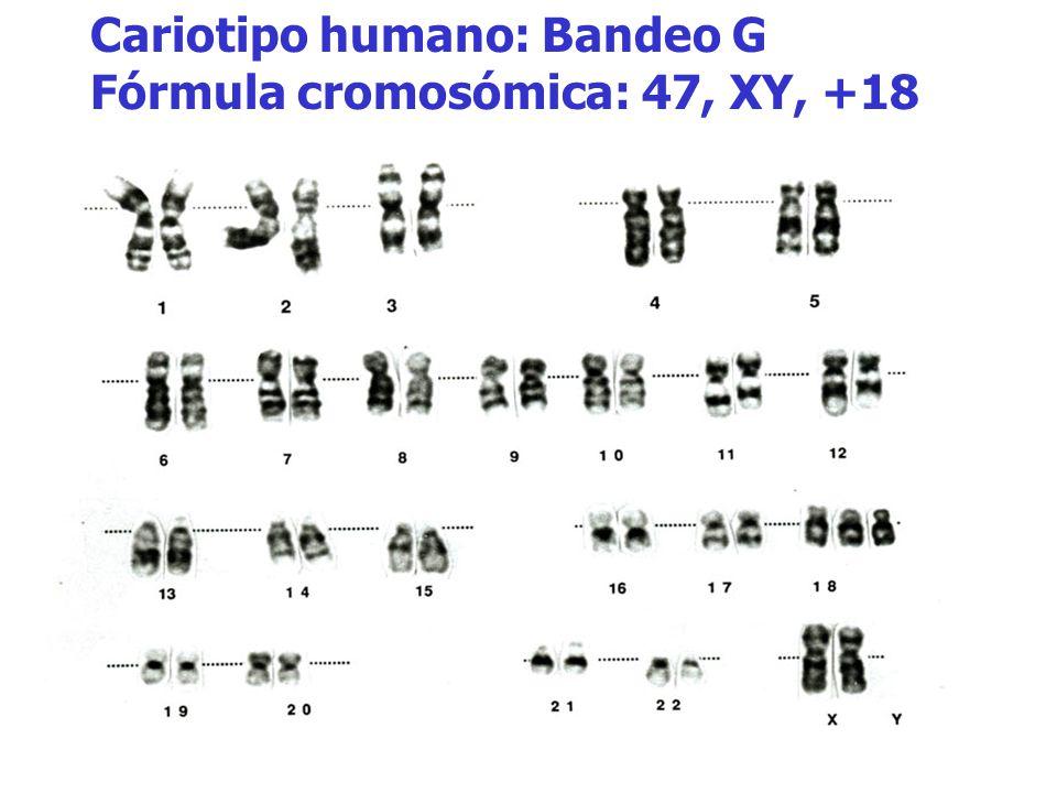Cariotipo humano: Bandeo G Fórmula cromosómica: 47, XY, +18