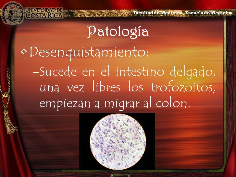 Patología Desenquistamiento: