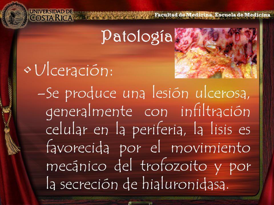 Patología Ulceración: