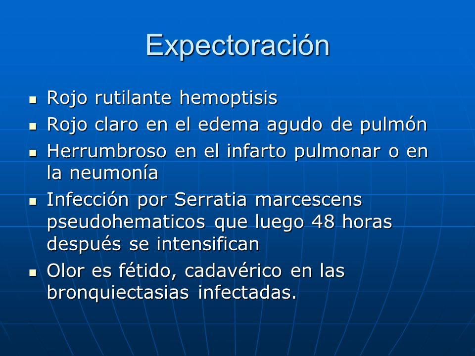 Expectoración Rojo rutilante hemoptisis