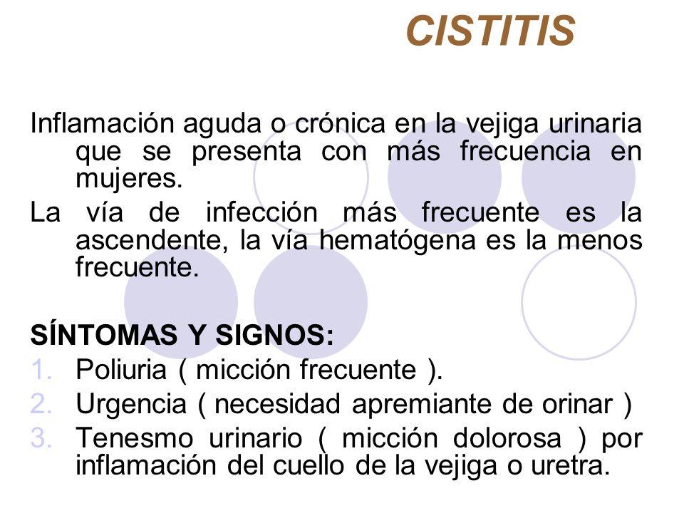CISTITIS Inflamación aguda o crónica en la vejiga urinaria que se presenta con más frecuencia en mujeres.