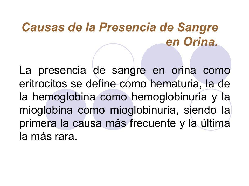 Causas de la Presencia de Sangre en Orina.