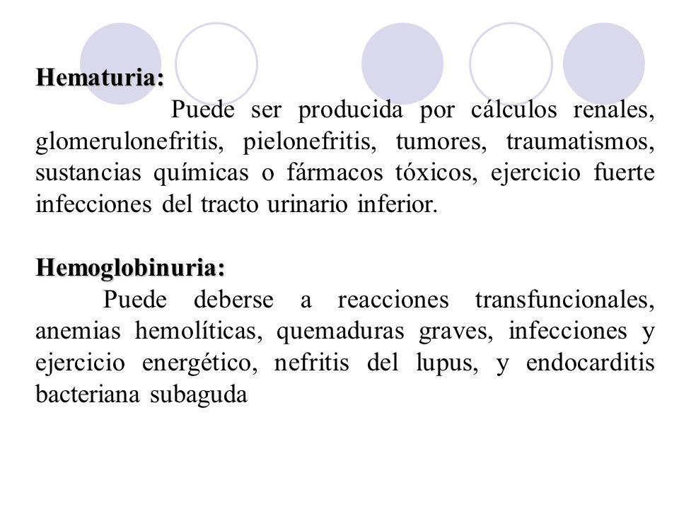Hematuria: