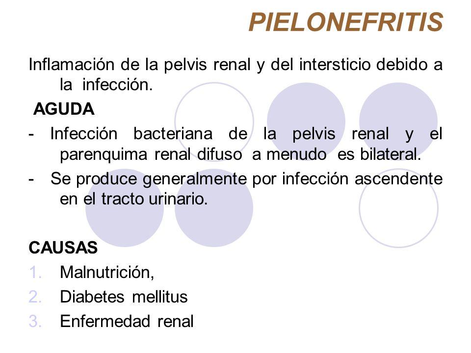 PIELONEFRITIS Inflamación de la pelvis renal y del intersticio debido a la infección. AGUDA