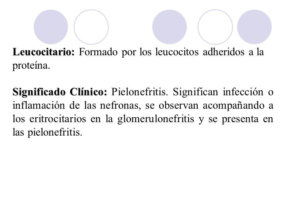 Leucocitario: Formado por los leucocitos adheridos a la proteína.