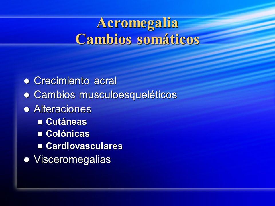 Acromegalia Cambios somáticos
