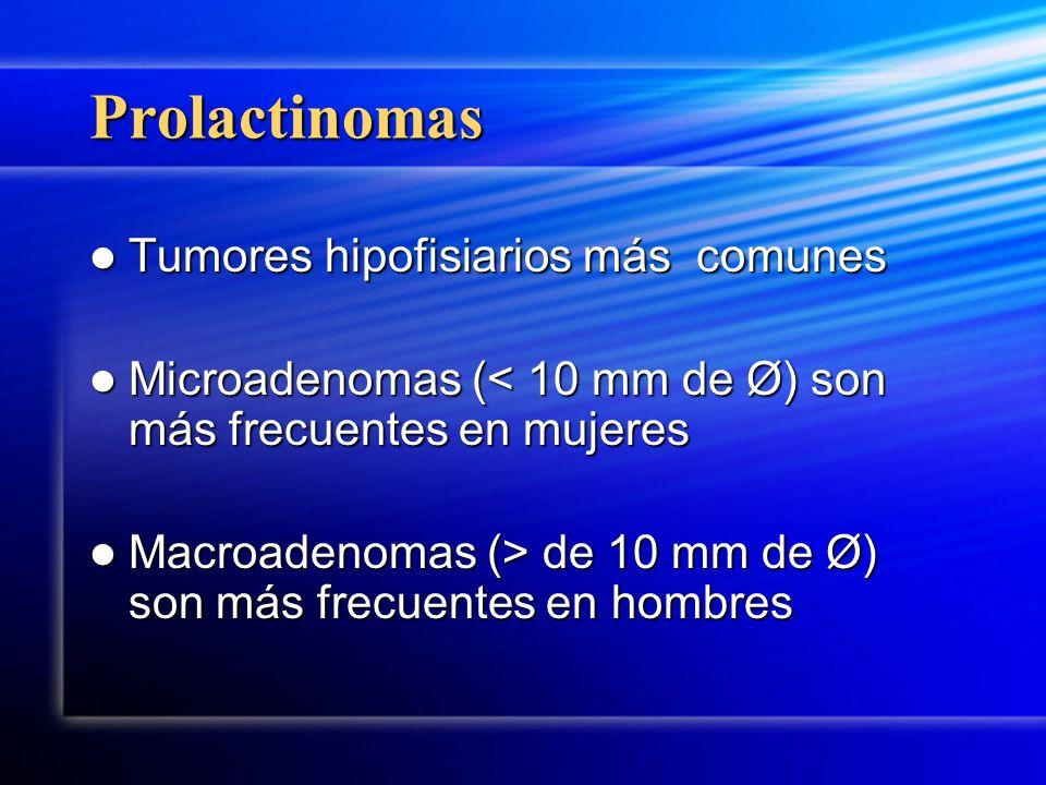 Prolactinomas Tumores hipofisiarios más comunes
