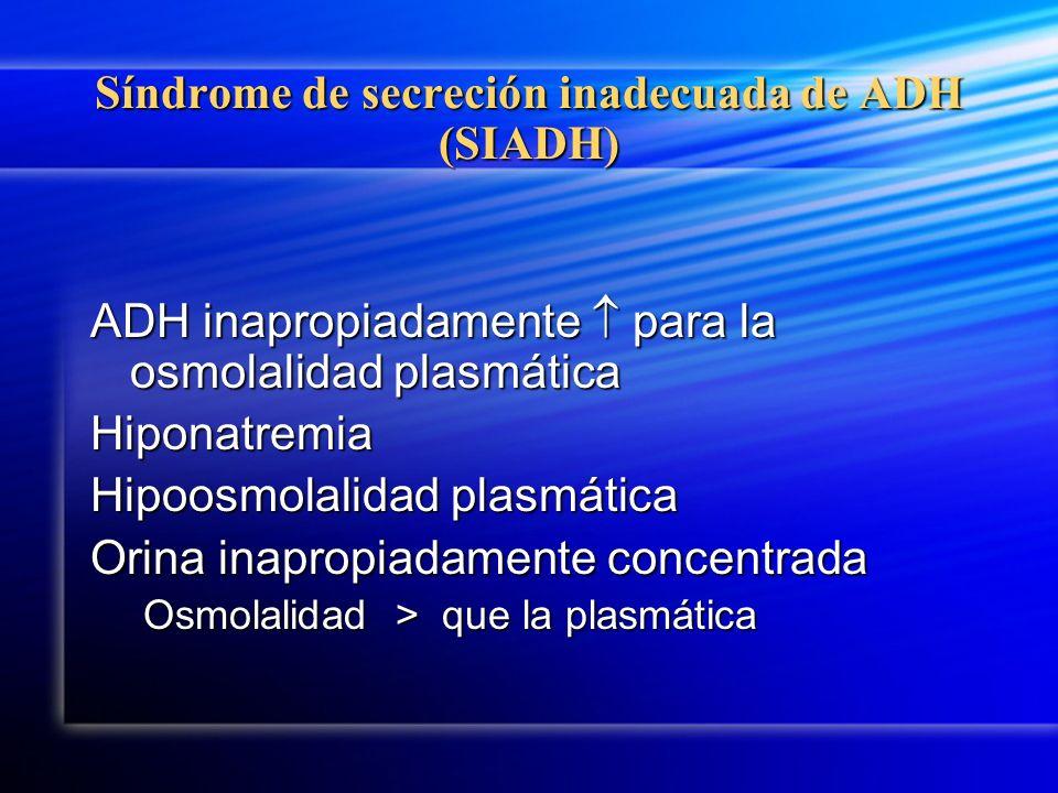 Síndrome de secreción inadecuada de ADH (SIADH)