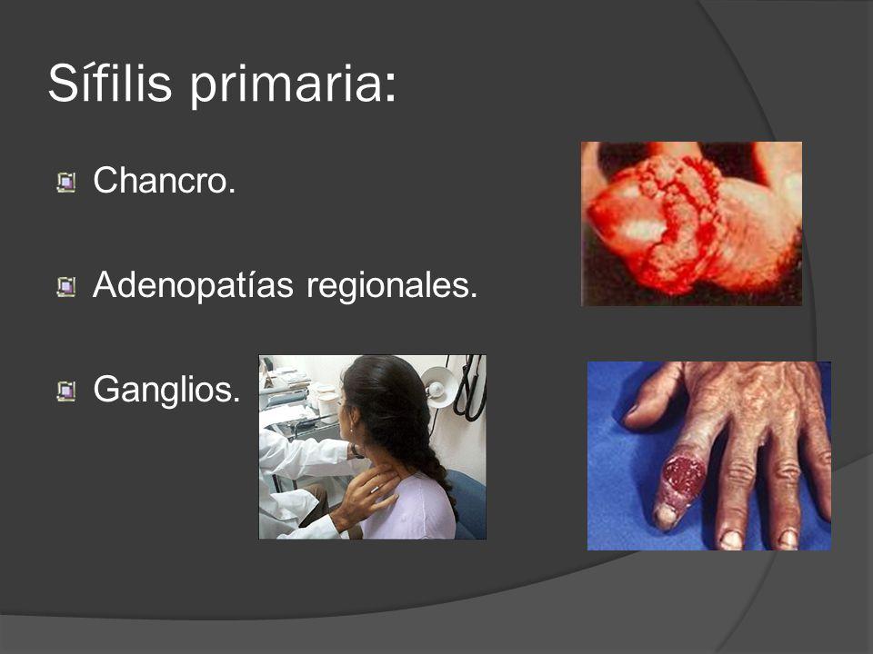 Sífilis primaria: Chancro. Adenopatías regionales. Ganglios.