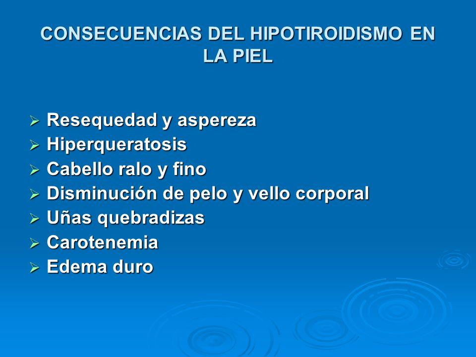 CONSECUENCIAS DEL HIPOTIROIDISMO EN LA PIEL