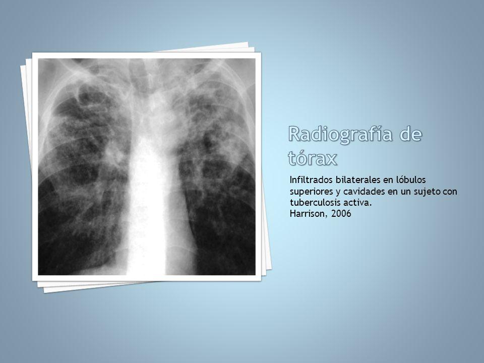 Radiografía de tóraxInfiltrados bilaterales en lóbulos superiores y cavidades en un sujeto con tuberculosis activa.