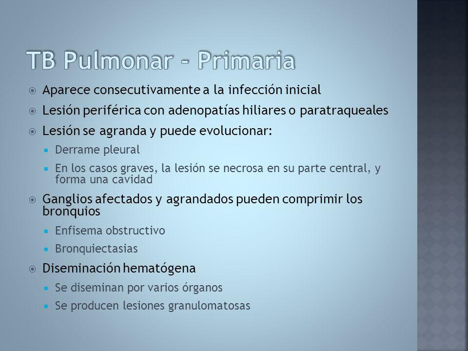 TB Pulmonar - Primaria Aparece consecutivamente a la infección inicial