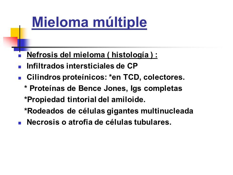 Mieloma múltiple Nefrosis del mieloma ( histología ) :