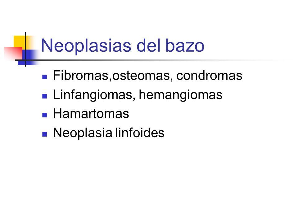 Neoplasias del bazo Fibromas,osteomas, condromas