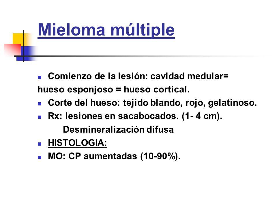 Mieloma múltiple Comienzo de la lesión: cavidad medular=