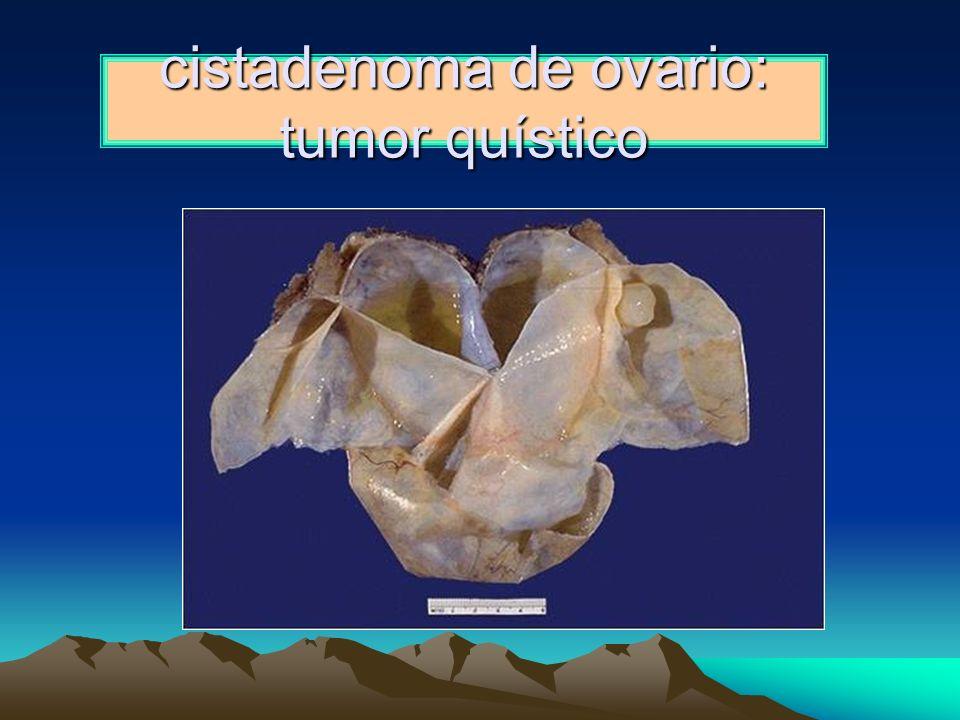 cistadenoma de ovario: tumor quístico