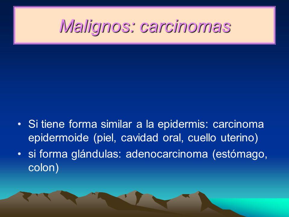 Malignos: carcinomas Si tiene forma similar a la epidermis: carcinoma epidermoide (piel, cavidad oral, cuello uterino)