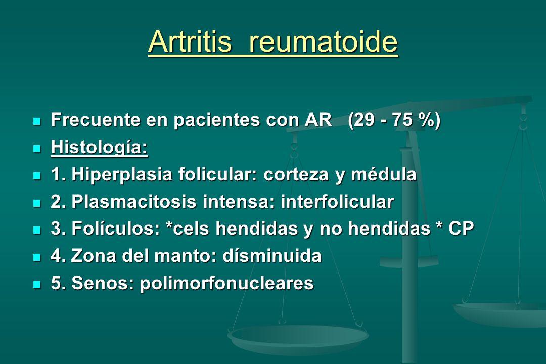 Artritis reumatoide Frecuente en pacientes con AR (29 - 75 %)