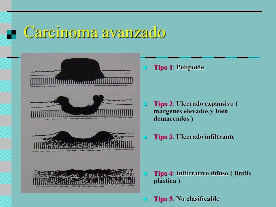 Carcinoma avanzado Tipo 1: Polipoide
