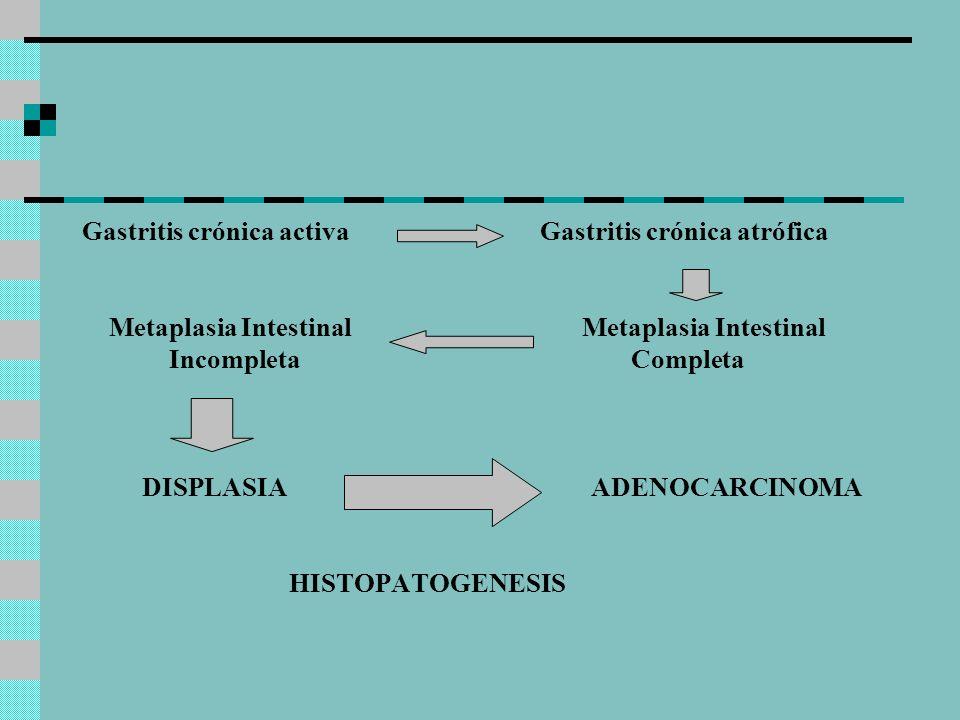 Gastritis crónica activa Gastritis crónica atrófica
