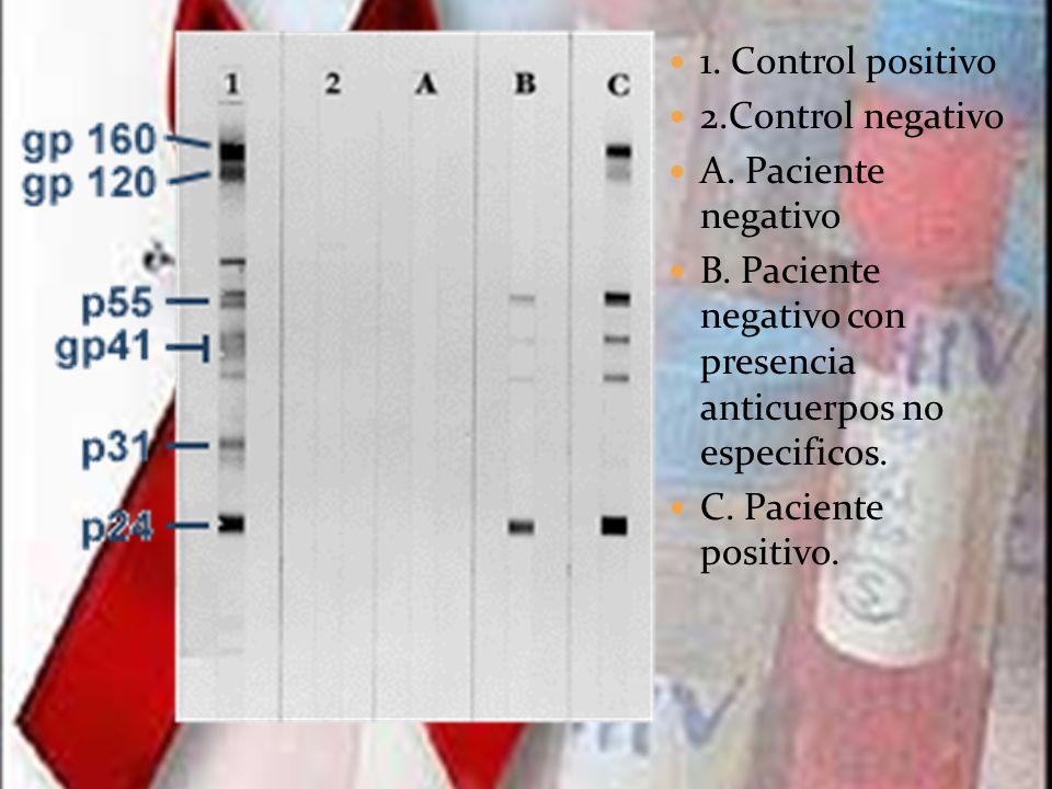 1. Control positivo 2.Control negativo. A. Paciente negativo. B. Paciente negativo con presencia anticuerpos no especificos.