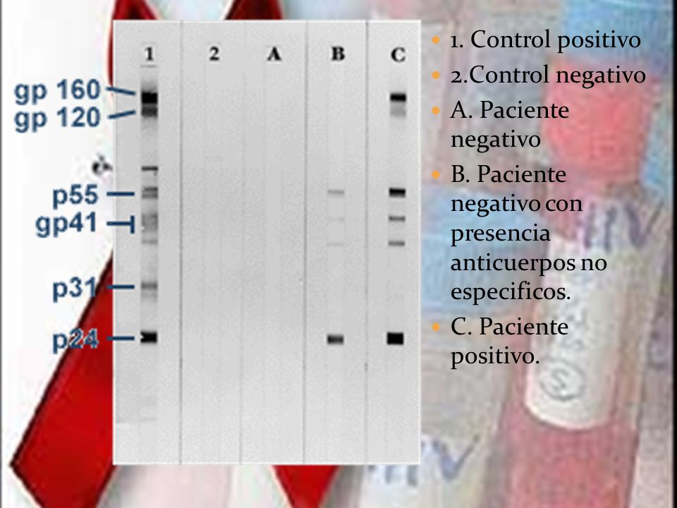 1. Control positivo2.Control negativo. A. Paciente negativo. B. Paciente negativo con presencia anticuerpos no especificos.