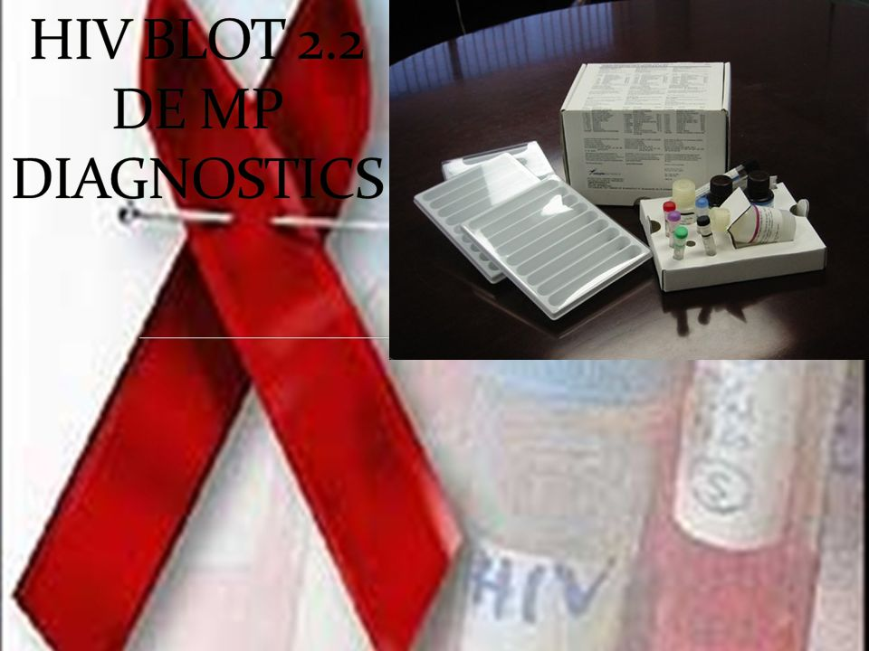 HIV BLOT 2.2 DE MP DIAGNOSTICS