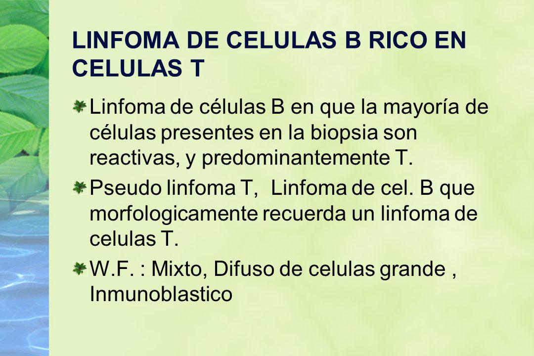 LINFOMA DE CELULAS B RICO EN CELULAS T