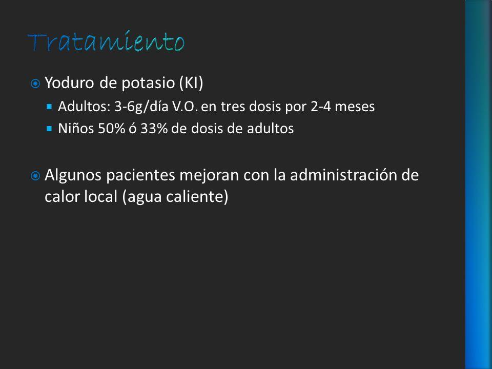 Tratamiento Yoduro de potasio (KI)