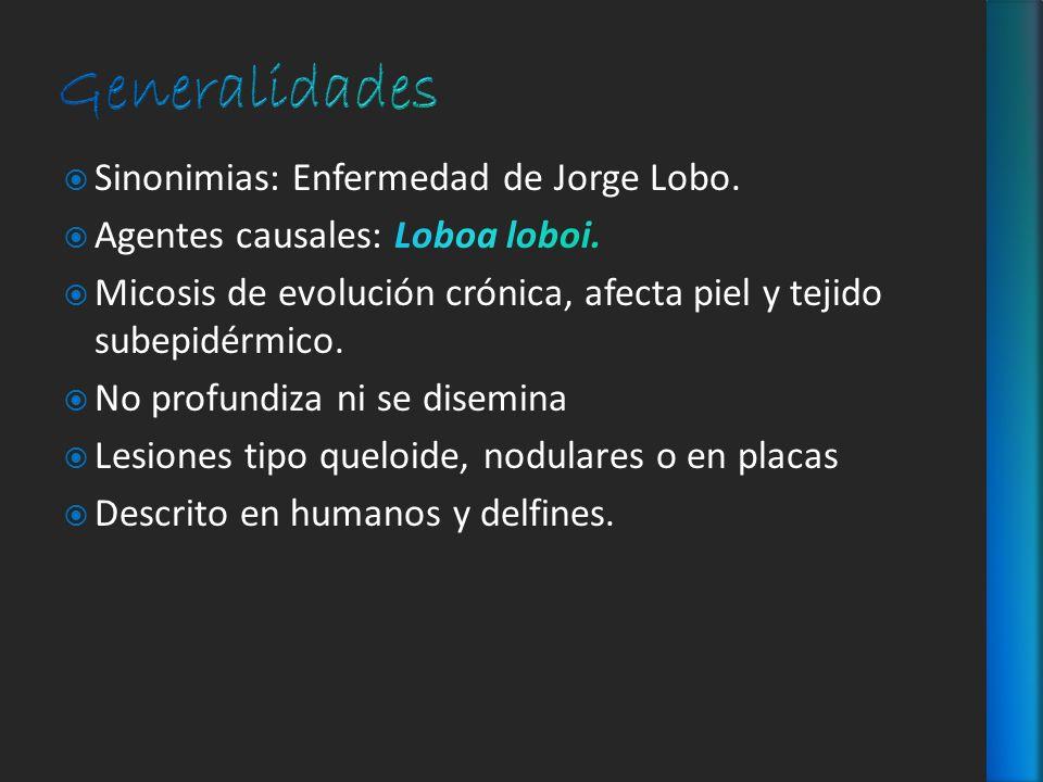 Generalidades Sinonimias: Enfermedad de Jorge Lobo.